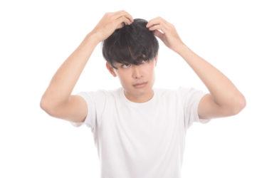 円形脱毛症の原因は?僕の円形脱毛症奮闘記①